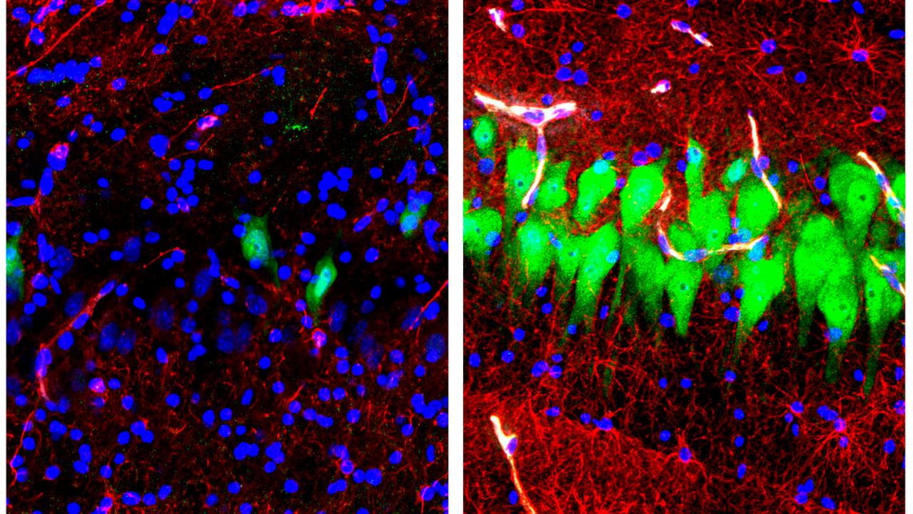 pig brain activity_1555586180493.jpg.jpg