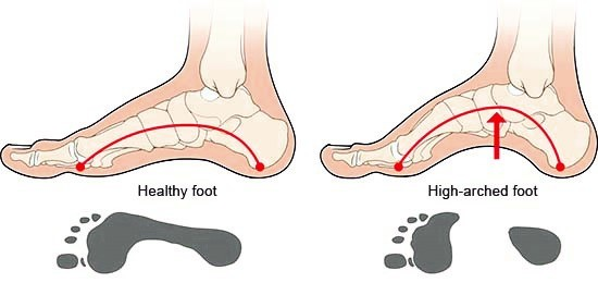Illustration: Healthy foot and high-arched foot – as described in the article