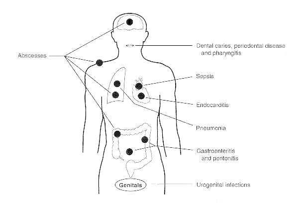 Figure 6-4. Clinical conditions that may be caused by members of the normal flora.