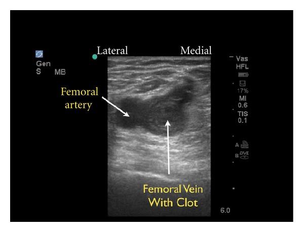 Le traitement de la thrombose de laorte abdominale