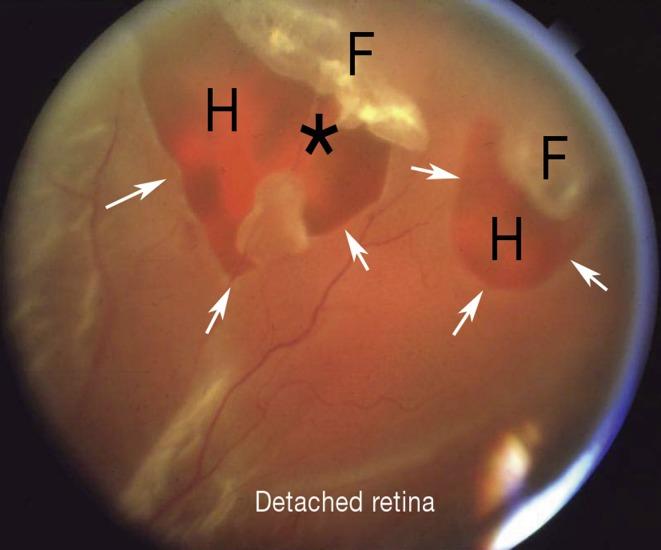 Déchirure et décollement de la rétine et du corps vitré | thoracotomie