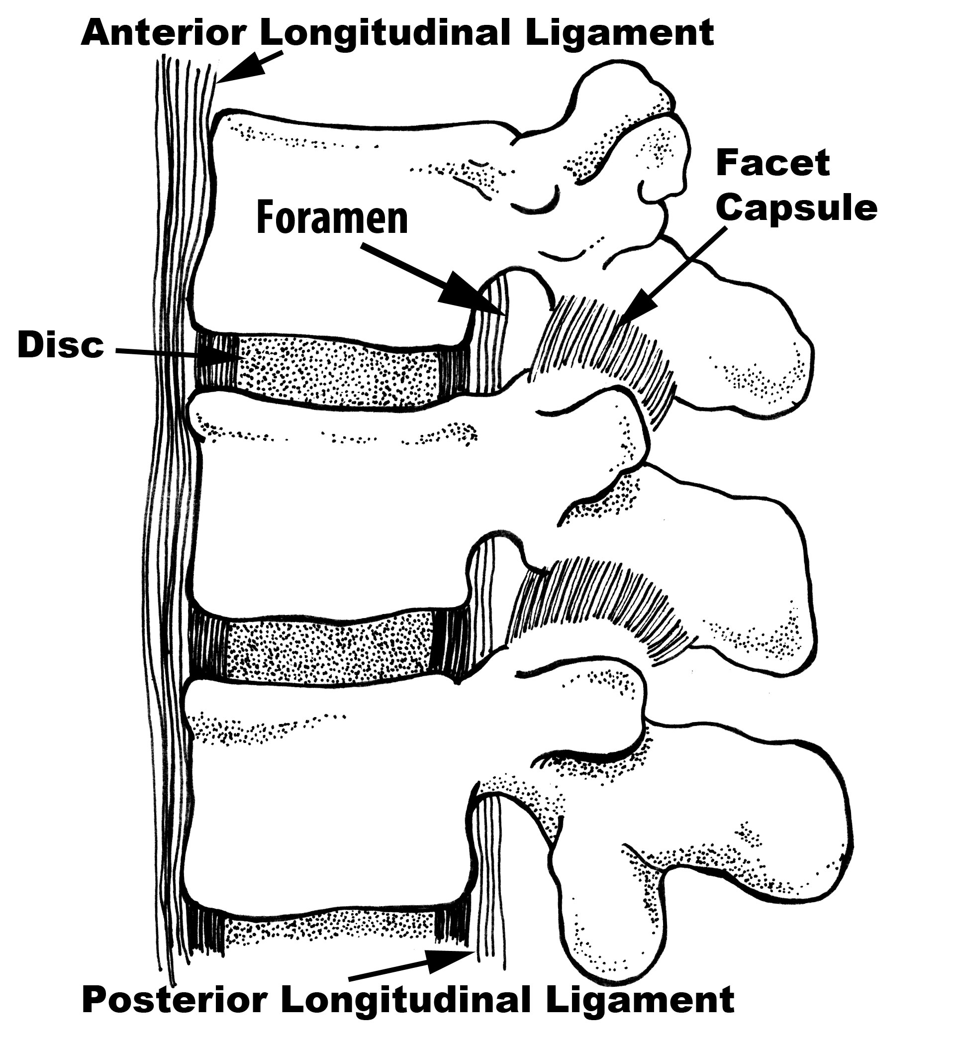 Foraminal Collapse