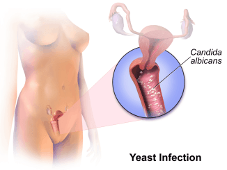 Frequent yeast infections