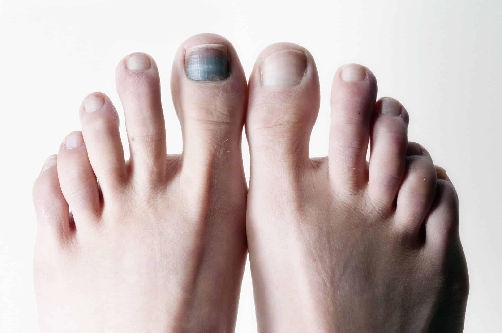 black toenail cancer