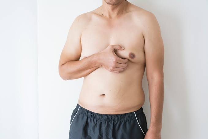Gynecomastia or man boob