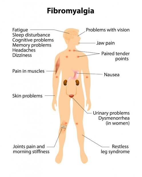 Symptoms experienced by fibromyalgic people