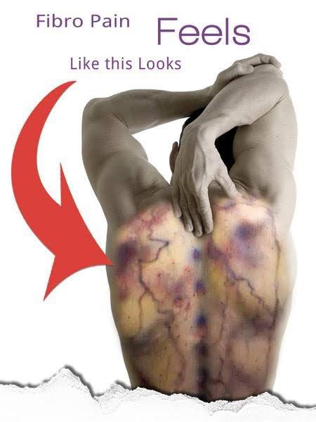 Fighting fibromyalgia pains