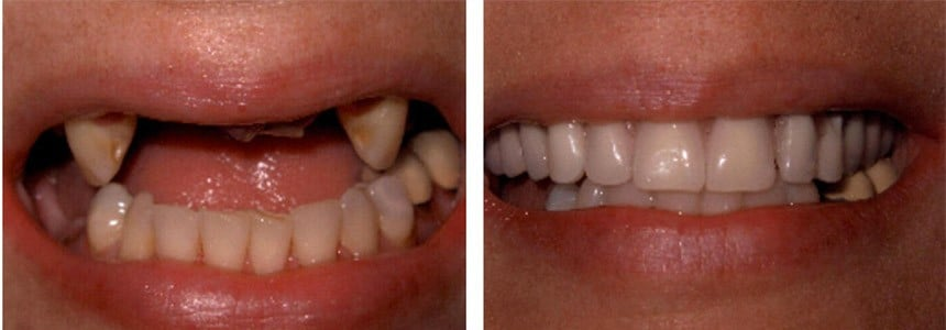 Patient's teeth before and after dental implant