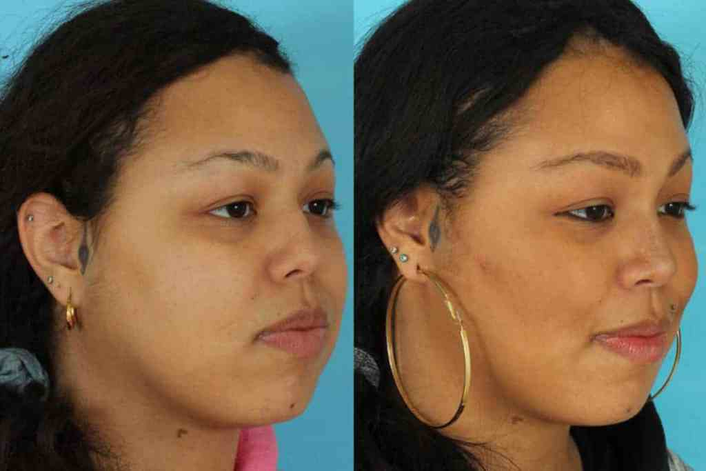 buccal fat reduction surgery before and after