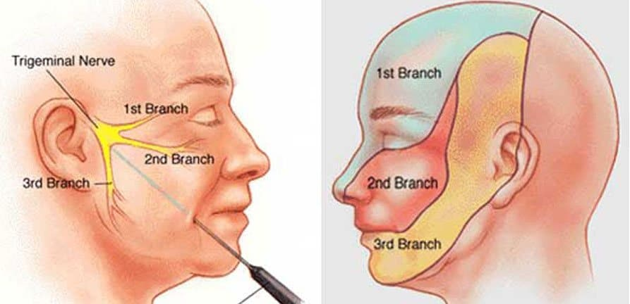 suicide disease or trigeminal neuralgia or suicide syndrome