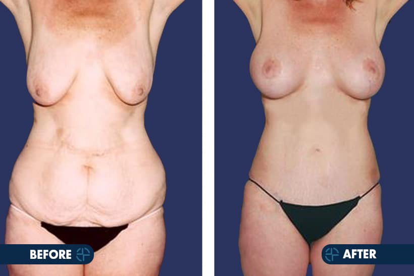 breast lift in breast cosmetic surgery