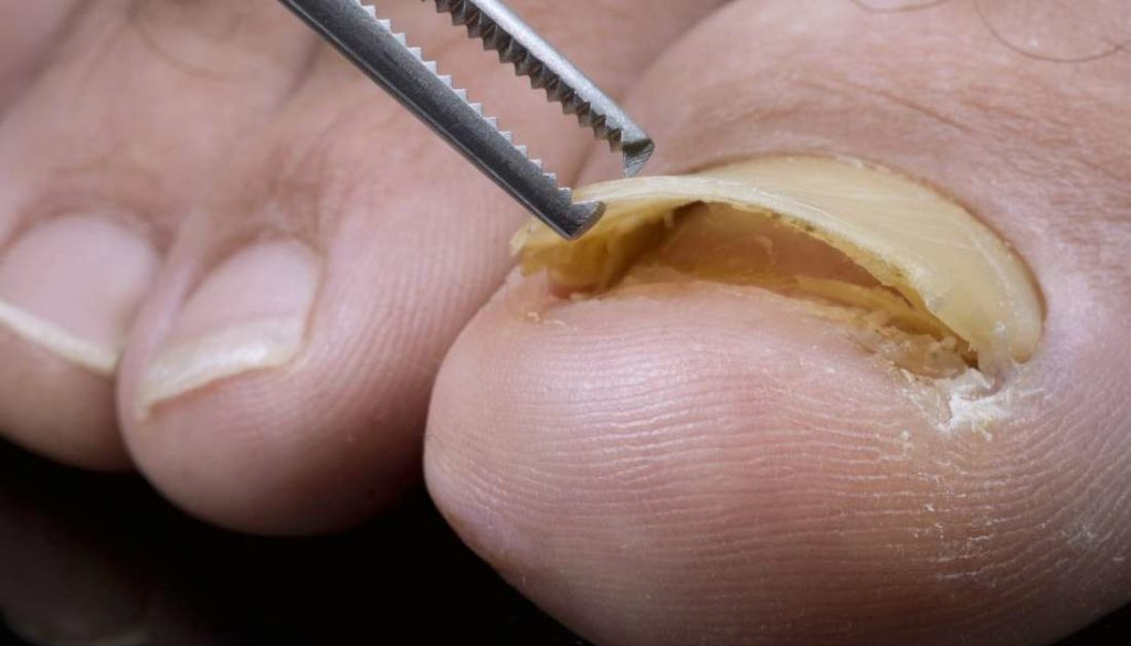 Can a Nail Grow Under Another Nail?