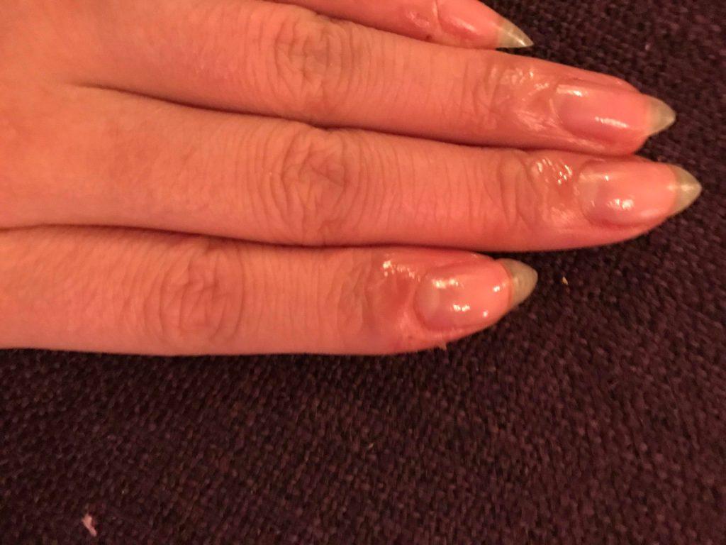 fingernail growing sideways