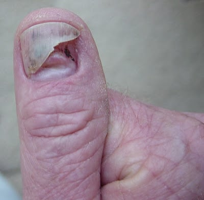 nail growing under another nail