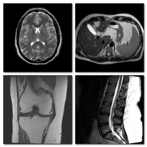 examples of MRI images