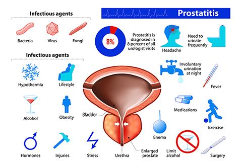 Prostatitis
