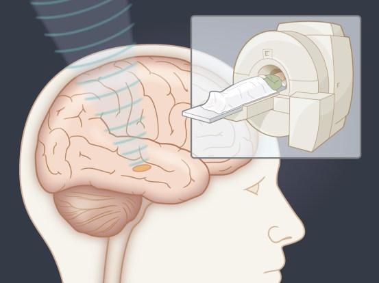 Ultrasound subthalamotomy for Parkinson's disease