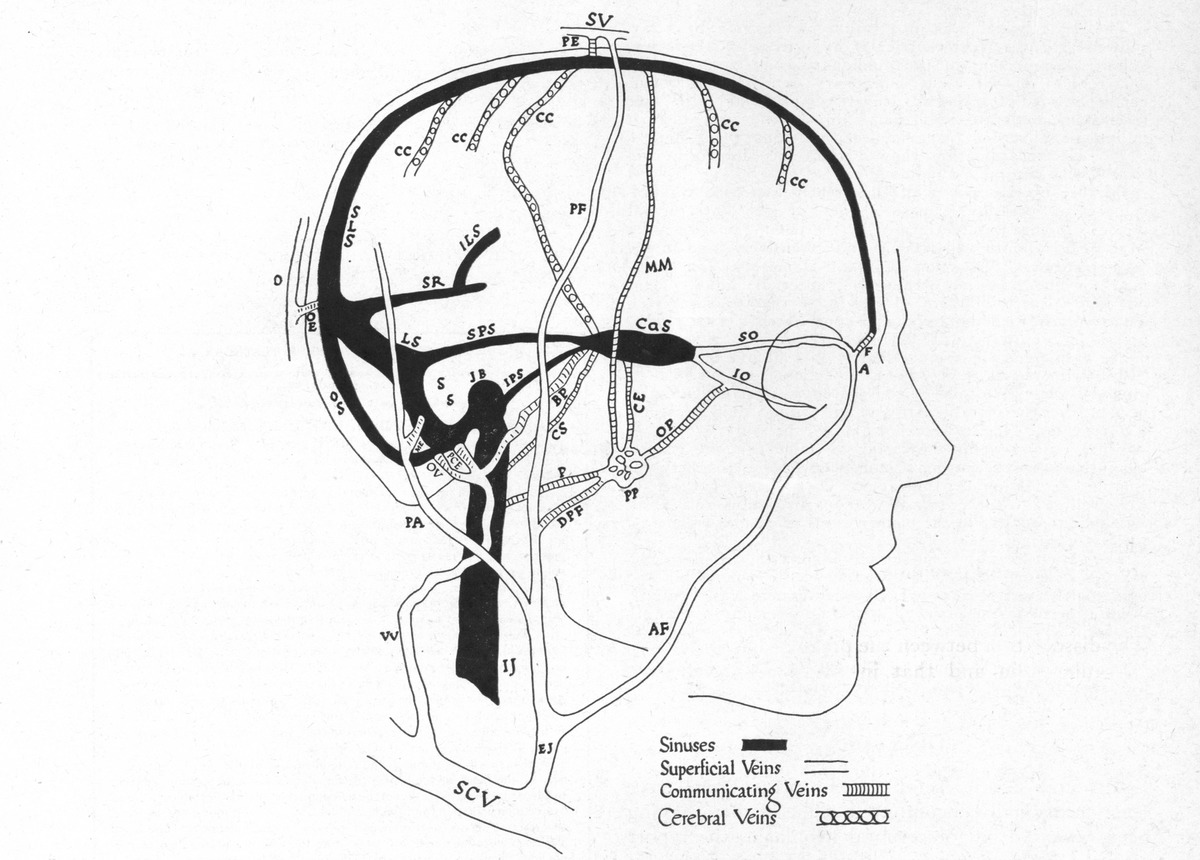 Plethora Of The Intracranial Venous Circulation In A Case