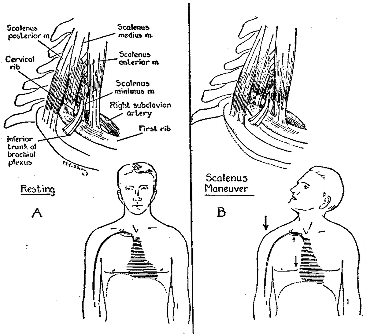 Auscultation In The Diagnosis Of Compression Of The
