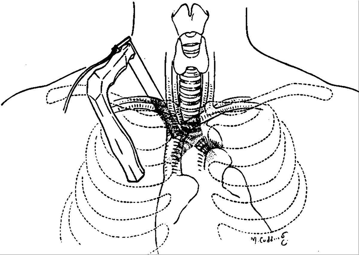 A Simple Cervicomediastinal Exploration For Tissue