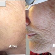 Tips for preventing wrinkles and skin aging