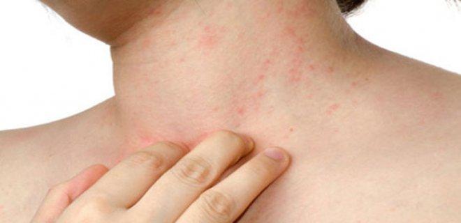 besin alerjisi belirtileri ve tedavisi 004 - Food allergy symptoms and treatment