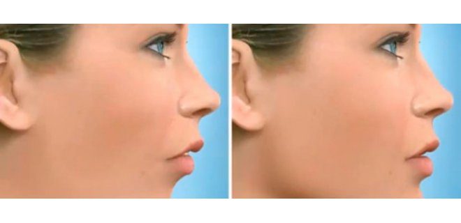 cene buyutme - How Jaw Surgery Is Performed?