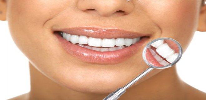 dis beyazlatma (bleaching) 001 - Tooth Whitening (Bleaching)