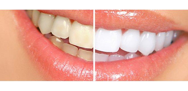 dis sararmasi - Herbal Teeth Whitening Methods