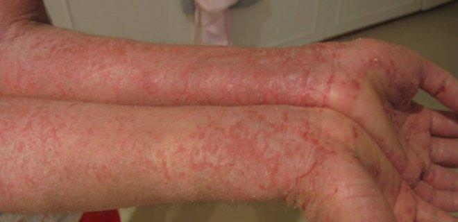 egzama - Eczema symptoms and treatment