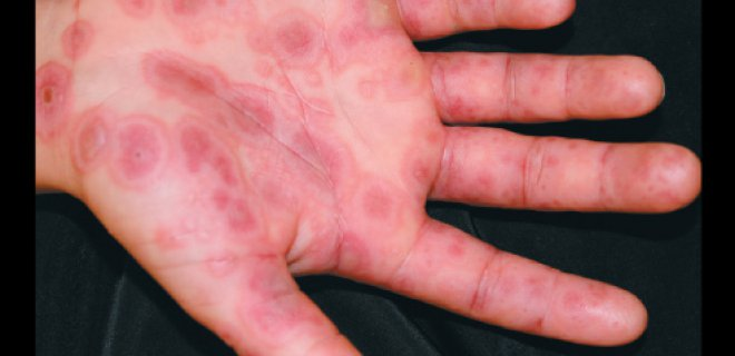eritema multiforme - What is Erythema multiforme and what are the symptoms?