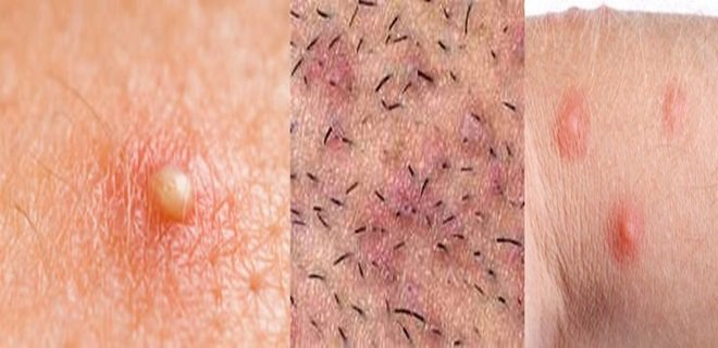 folikulit 002 - Hair follicle Infection (Folliculitis) and treatment