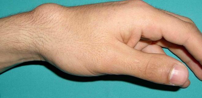 ganglion kisti nerede olur - Ganglion cyst what is it and how is it treated?