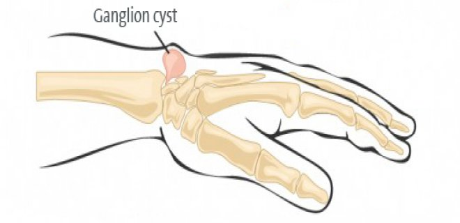 ganglion kisti - Ganglion cyst what is it and how is it treated?