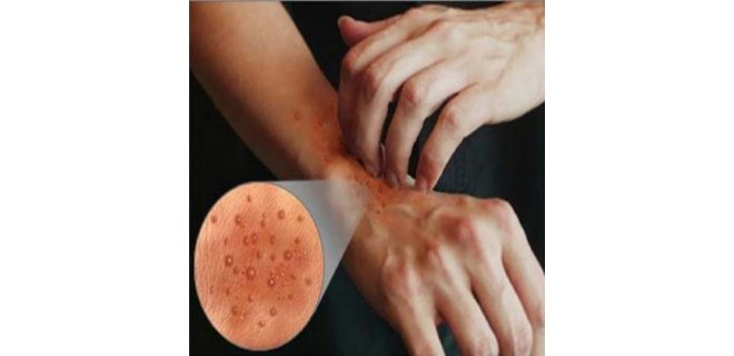iimpetigo nasil yayilir - What causes Impetigo and how is it treated?
