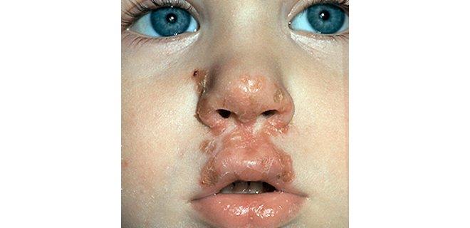 impetigo bulgulari - What causes Impetigo and how is it treated?