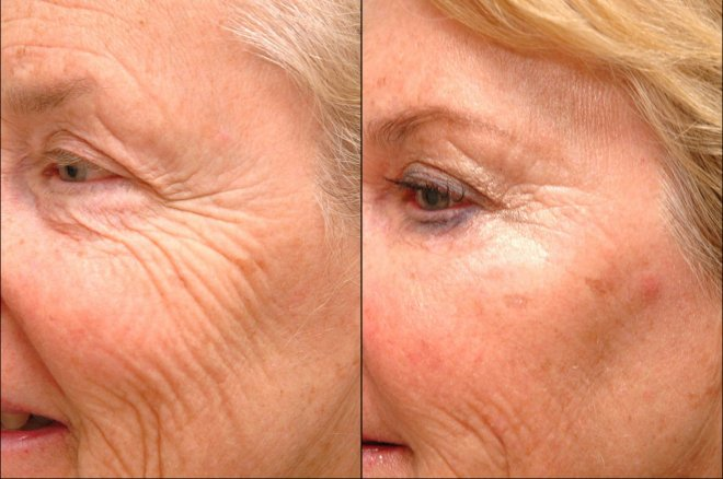 kirisiklik nedir - Natural Solutions Against Wrinkles