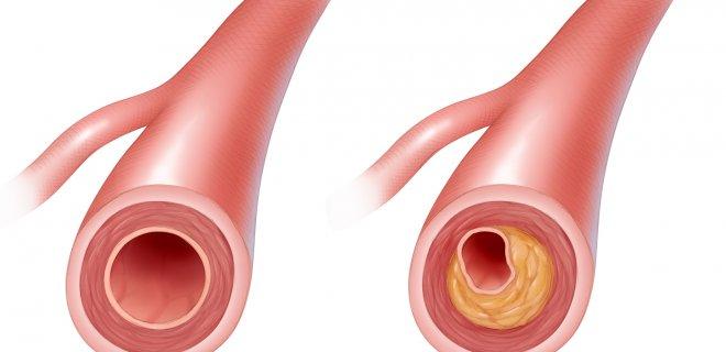kolesterol-2.jpg