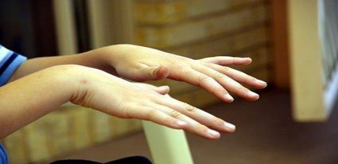 kore hastaligi - The Korean Disease causes and treatment