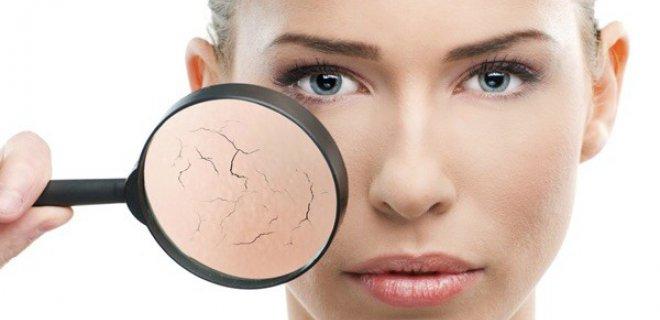kuru ciltler 005 - Plant Oils Moisturizes The Skin