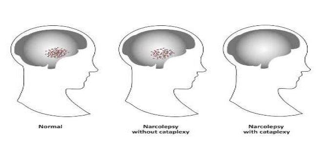 narkolepsi hakkinda bilinmesi gerekenler - You Need To Know About Narcolepsy