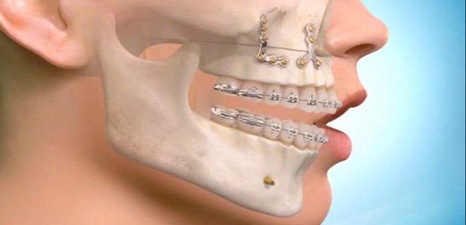 ortodonti tedavi asamalari 005 - Orthodontic Treatment Stages