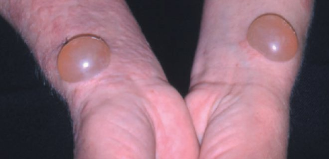pemfigus nedir - Symptoms and treatment of disease pemphigus