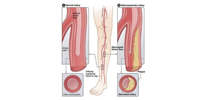 periferik damar hastaligi - What is Peripheral vascular disease and what are the symptoms?