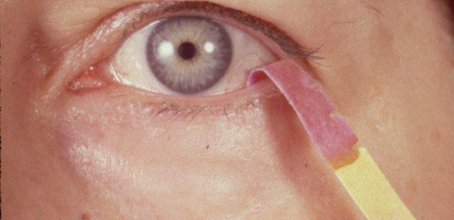 schirmer testi - What Is Dry Eye Syndrome?