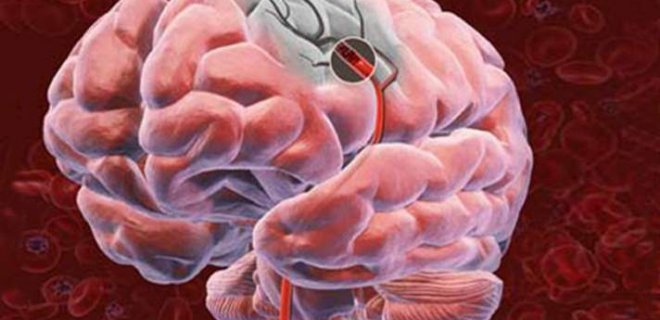 What Is Cerebrovascular Disease