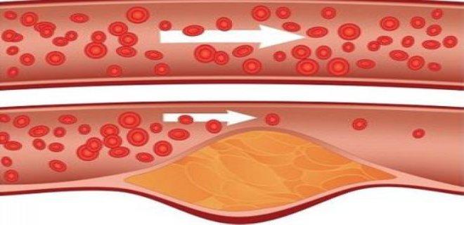 serebrovaskuler hastalik teshisi ve tedavi yontemleri 004 - Cerebrovascular disease