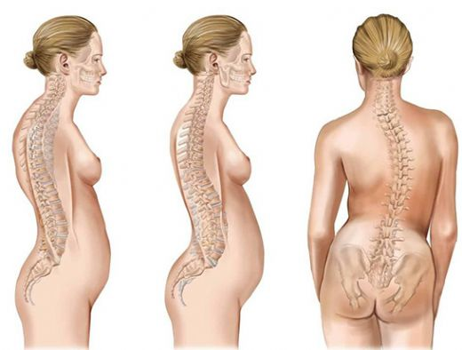 skolyoz nedir skolyoz egzersizleri 002 - Scoliosis (Curvature Of The Spine) What Is It & What Are Scoliosis Exercises?