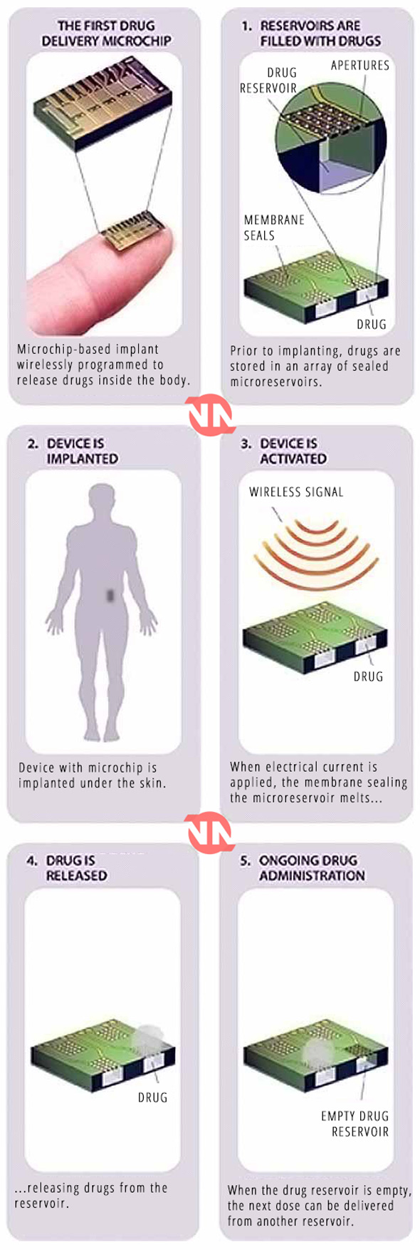 how the remote birth control microchip works