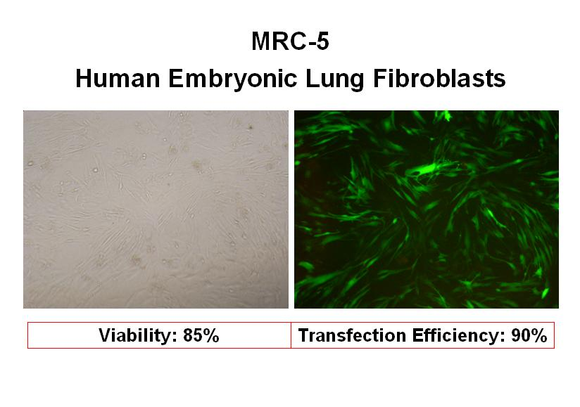 Image result for human fetal lung fibroblast MRC-5 cells